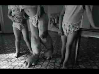 Чернобыль люди мутанты